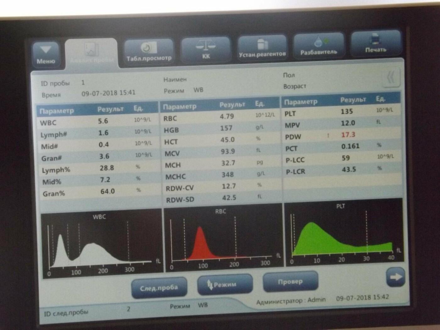 Чекати не доведеться: на Волині результати аналізу крові отримують миттєво, фото-1